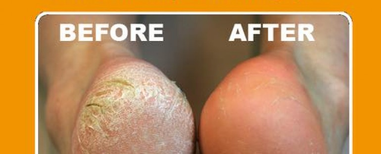 CALLUS PEELS NOW AVAILABLE ONLY £25